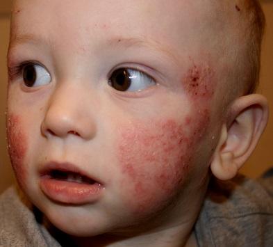 Seborrhoeic dermatitis - Wikipedia